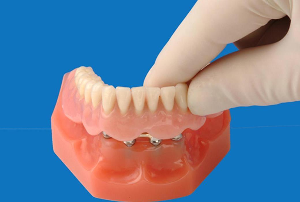 Зубные импланты при полном отсутствии зубов